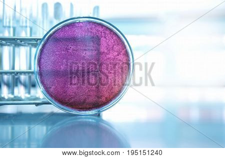 bacteria purple pretri dish in microbiology science laboratory and test tube background