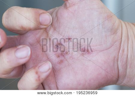 Hands of an adult woman with a problem of dermatitis