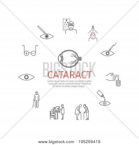 Cataract. Symptoms, Treatment. Line icons set. Vector signs for web graphics