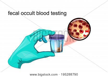 fecal occult blood testing. vector illustration. lab