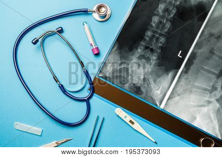 Roentgenogram and doctor tools on blue surface. Medical concept