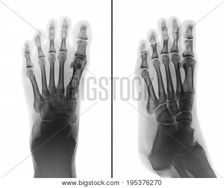 Film x-ray both normal human foots . 2 position ( front view and side view )