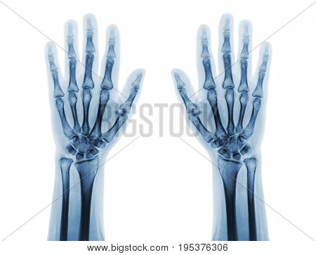 Film x-ray of both normal human hands . front view .