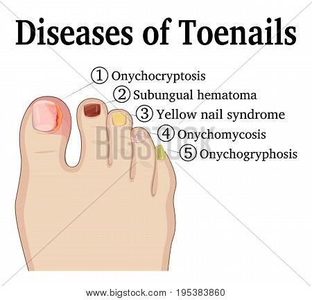 Illustration of five different nail diseases on the toenails, such as Onychocryptosis, Onychomycosis, Onychogryphosis, Subungual hematoma and Yellow nail syndrome