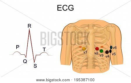 vector illustration of electrocardiogram. Chest leads. cardiology