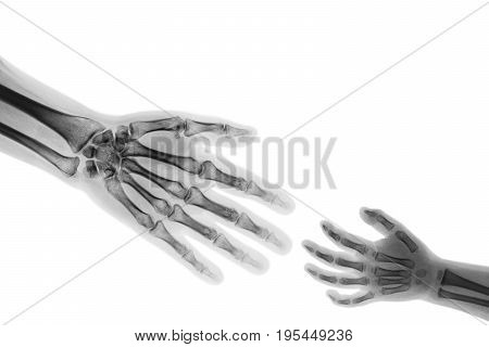 Adult help child . adult stretch out hand for grasp child hand . ( Connotation : Help orphan Medical aid ) poster