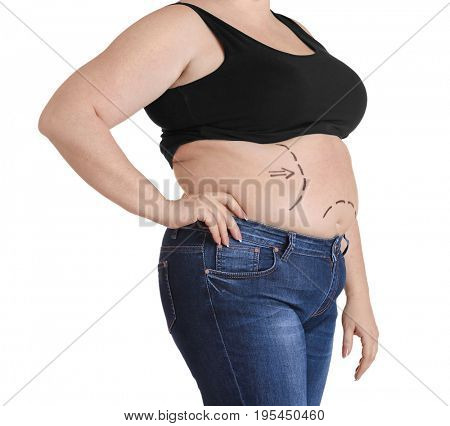 Stout adult woman with marks on belly for plastic operation. Weight loss concept
