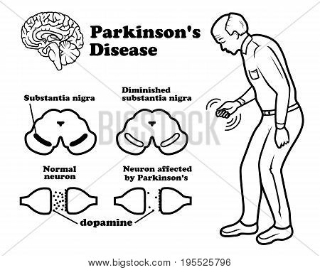 Vector clinical scheme of Parkinson's disease on white background