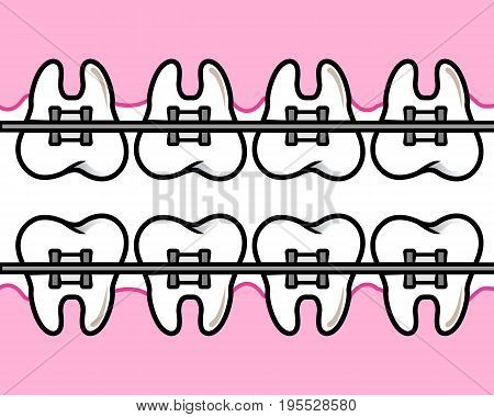 Vector teeth with metal braces on white background