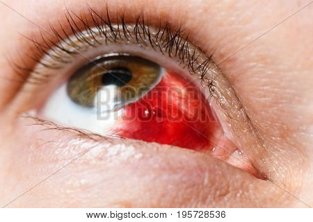 Subconjunctival hemorrhage - hyposphagma. Closeup of woman's face showing red bloodshot eye with browm iris looked up and right vclosejre very close