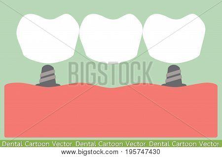 dental cartoon vector - treatment with dental bridge