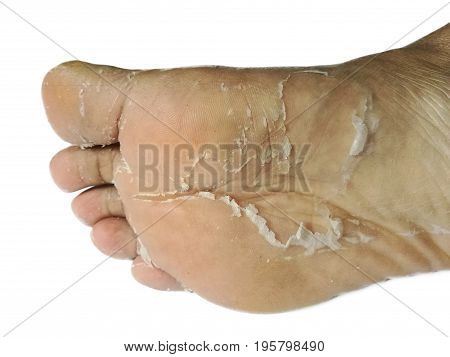Asia men skin foot peeling due to an allergic chemical  reaction,isolated on white background.