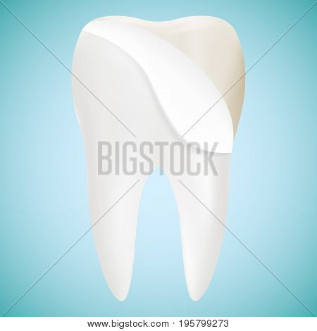 Tooth Veneer Whitening Dental Technician Vector Concept Isolated On A Background. Realistic Vector Illustration. Healthcare stomatology and cleaning professional teeth illustration