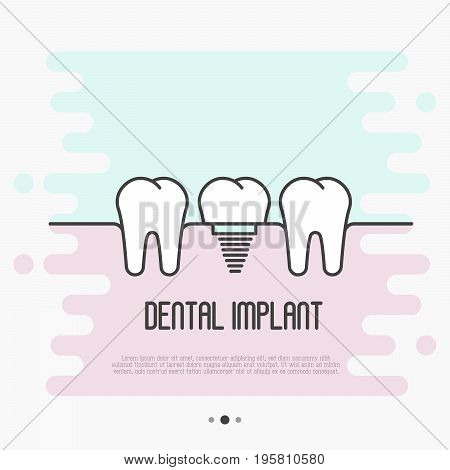 Dental implant concept: two healthy teeth and implant tooth between. Thin line vector illustration.