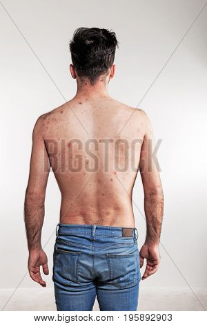 Man on white background, back with pimples
