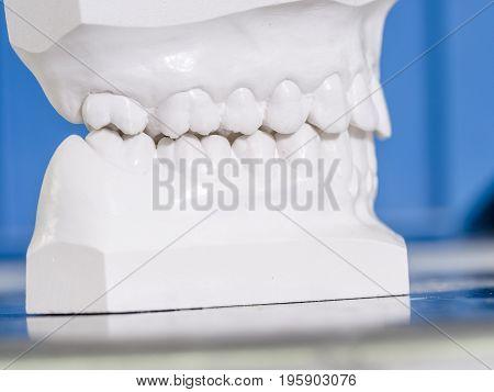 White Mold Dental Of Plaster