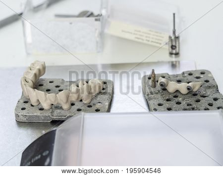 Mplants Teeth Made In The Technic Opaque Porcelain Dental. Oxidized Metal Opaque.
