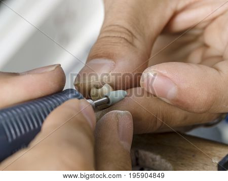Dental Technician Modelling An Implant Ceramic Tooth With A Drill.
