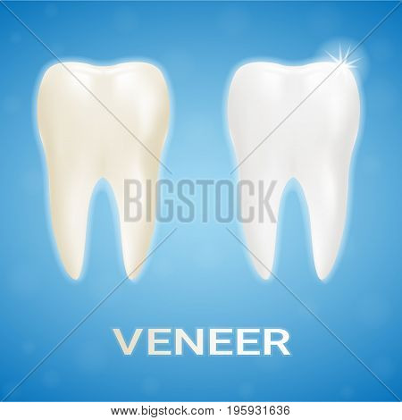 Tooth Veneer Whitening Dental Technician Isolated On A Background. Realistic Vector Illustration. Healthcare stomatology and cleaning professional teeth illustration