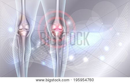 Joint Treatment Abstract Background