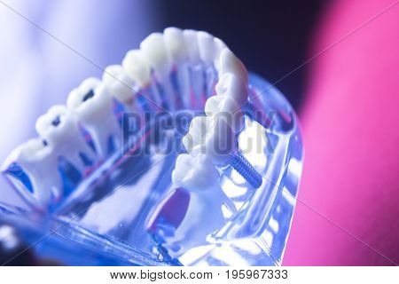 Dental Tooth Health Decay