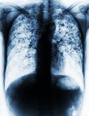 Pulmonary Tuberculosis . Film chest x-ray show fibrosis interstitial infiltration both lung due to Mycobacterium tuberculosis infection . poster