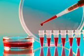 Pipette and Pcr strip poster