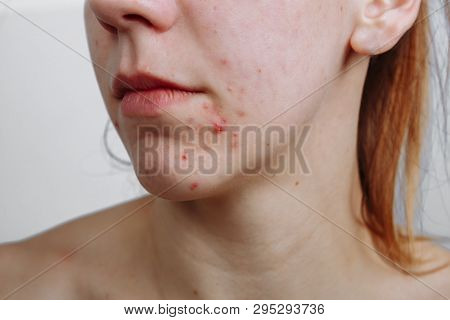 Young Women With Problematic Skin And Pimples On Her Face. Feamle Showing Her Acne. Skincare, Beauty