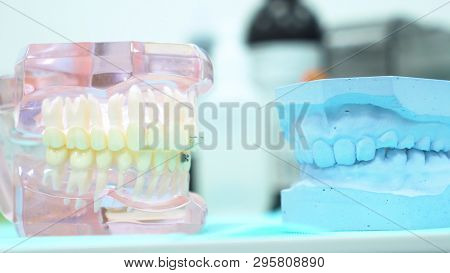 A Model Of The Jaw On The Table Of The Dental Clinic, Dental Care And Medicine Concept. Media. Close