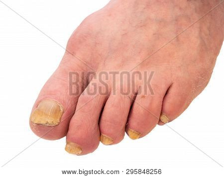 Closeup Of Man Foot With Nail Fungus. Surface Is Diseased And Have Unnatural Yellow Color. Image Iso