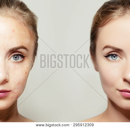 Woman Face Portrait With Clear And Pimpled Skin