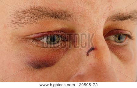 men with eyes hematomas and bruising, and wound