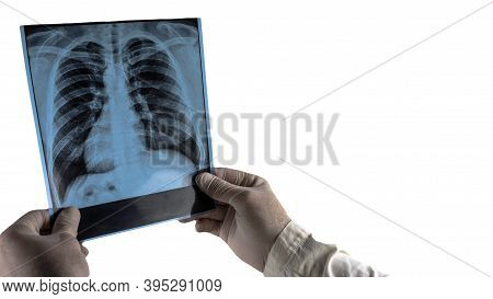 Human Lungs X-ray Isolated On White, Doctor Examines Lungs X-ray, Pneumonia Snapshot Picture