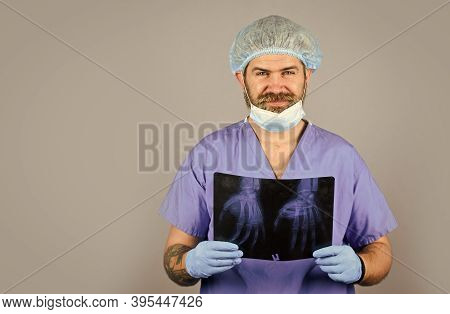 Radiologist Hold Xray. Doctor Examines Radiographical Snapshot. X-raying Of Hands. Nurse Checking X-