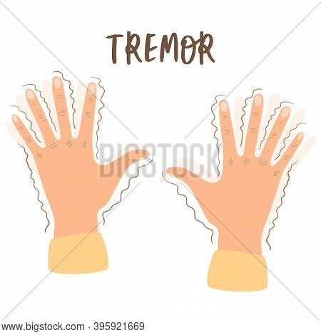 Flat Vector Illustration Of A Tremor. Trembling In The Hands-symptoms Of Various Mental Disorders, P
