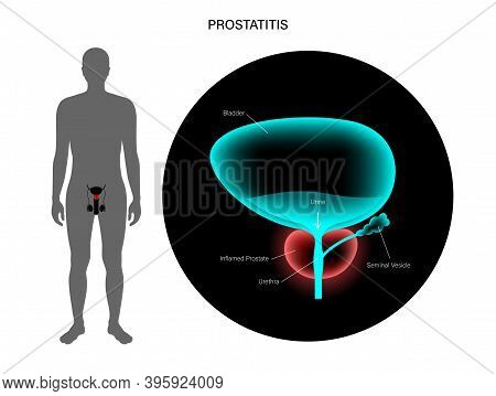 Prostatitis Swelling And Inflammation Of Prostate Gland 3d Realistic Vector Illustration. Painful An
