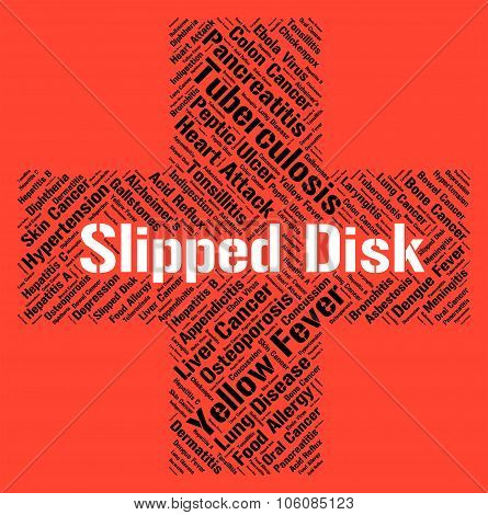 Slipped Disc Represents Lifting Injuries And Bulge