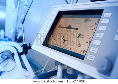 Monitoring Of Mechanically Ventilated Patient