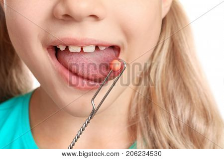 Cute girl with logopedic probe for speech correction, closeup