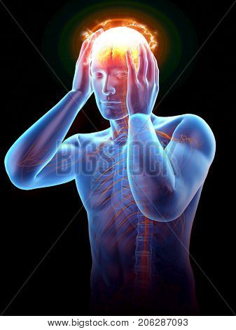 3d rendered medically accurate illustration of man having a headache