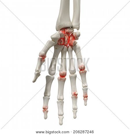 3d rendered medically accurate illustration of an arthritic hand