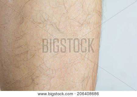 Hair on the shin of Asian man. Closeup of skin with grown hair.