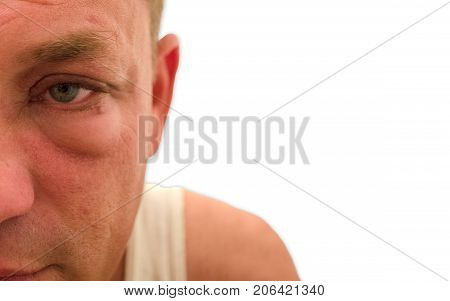 Close up shot of a man's eye that is swollen red and puffy because of an allergic reaction on a white background.