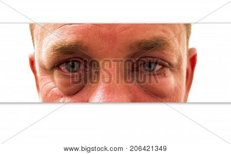 Cropped photo of a mans eyes that are red itchy irritated and swollen.