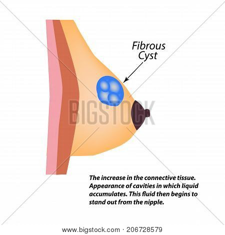 Fibrous cyst breast. World Breast Cancer Day. Tumor of the mammary gland. Vector illustration on isolated background.