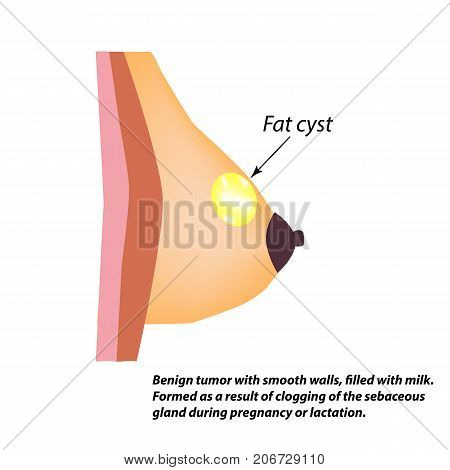 Fatty cyst breasts. Fat cyst. World Breast Cancer Day. Tumor of the mammary gland. Vector illustration on isolated background.