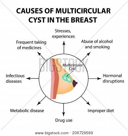 The causes of multicameral cyst. World Breast Cancer Day. Tumor. Vector illustration on isolated background.