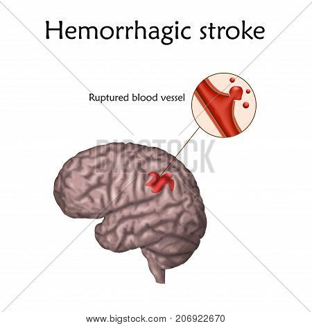 Hemorrhagic Stoke poster, banner. Vector medical illustration. white background, anatomy image of damaged human brain, ruptured blood vessel.