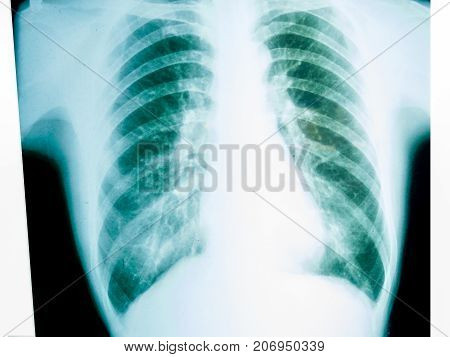 X-ray of a human male chest showng rib cage