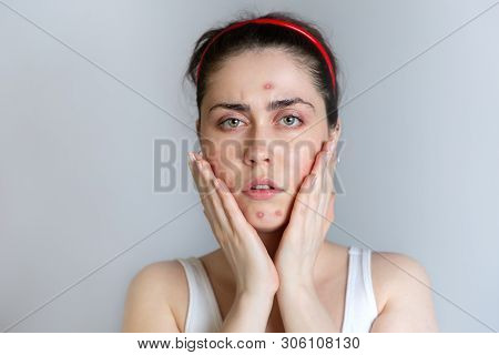 A Beautiful Young Woman Gets Upset About Acne On Her Face. The Concept Of Acne, Growing Up And Cosme